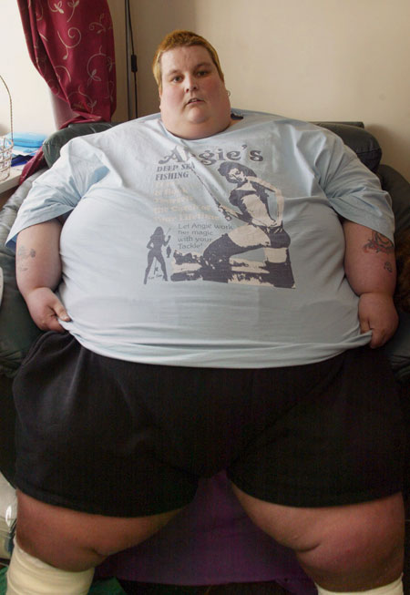 A Picture Of A Fat Person